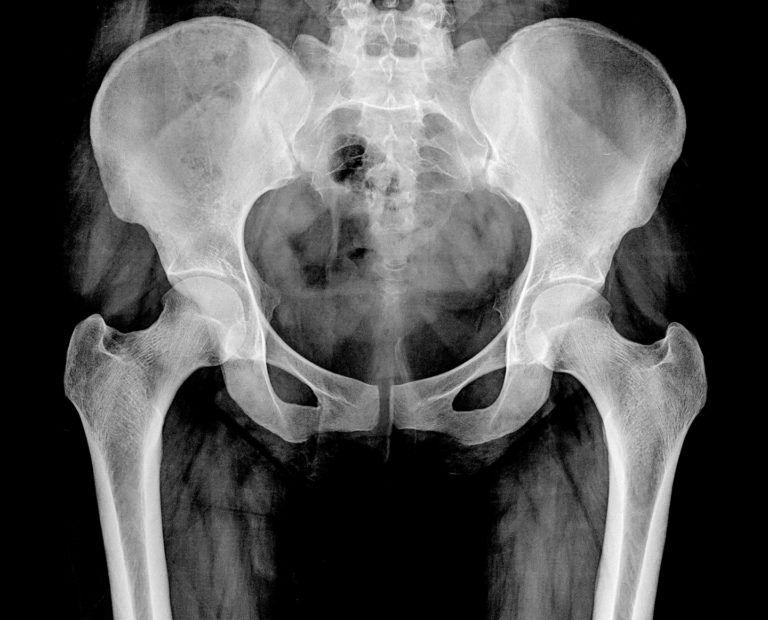 fisioterapia y osteopatia
